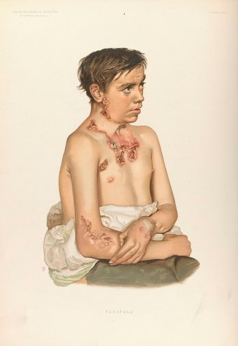 Young man with a typical case of scrofula